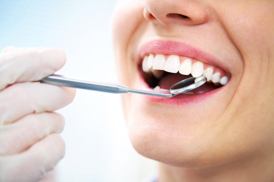 Zubnim implantima do blistavog osmijeha